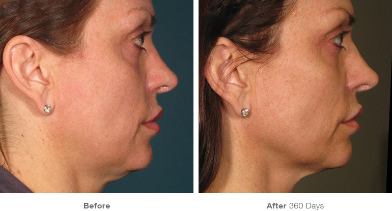 before_after_ultherapy_results_full-face3