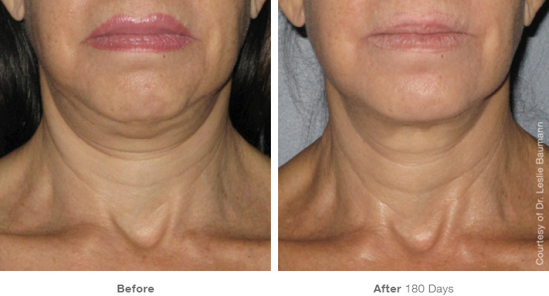 ultherapy-0008-0086w_180day_1tx_neck1_gallery