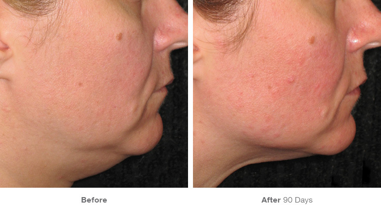 before_after_ultherapy_results_under-chin34