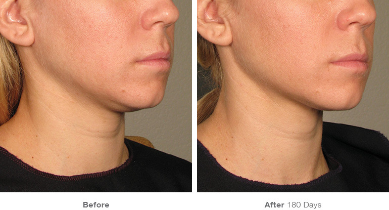 before_after_ultherapy_results_under-chin36