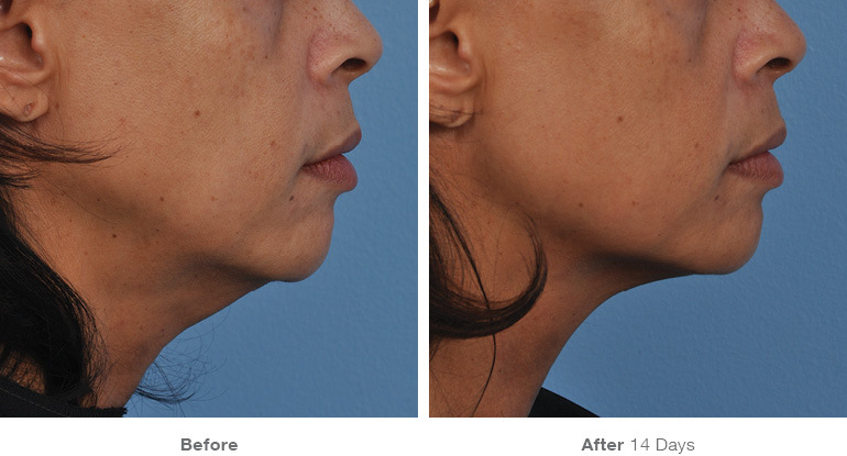 before_after_ultherapy_results_under-chin37
