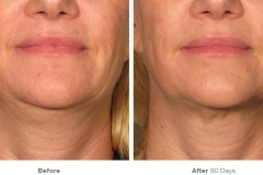 before_after_ultherapy_results_under-chin29