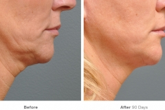 before_after_ultherapy_results_under-chin33