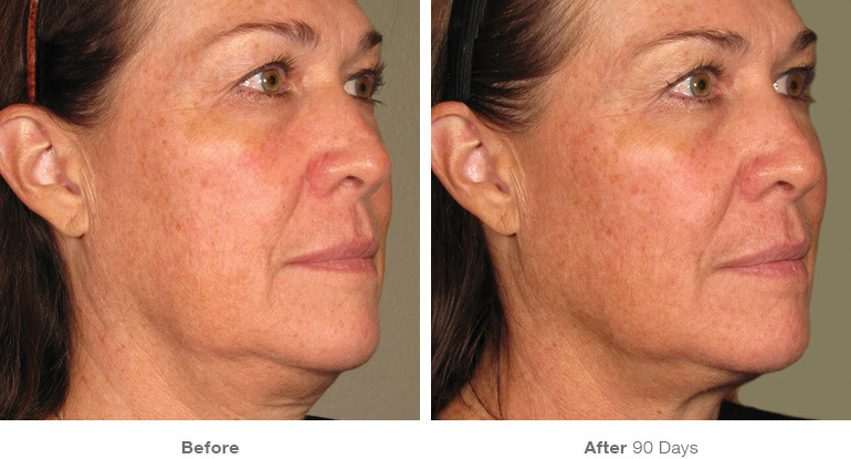 before_after_ultherapy_results_full-face20