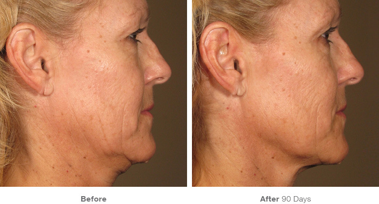 before_after_ultherapy_results_full-face24