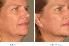before_after_ultherapy_results_full-face21