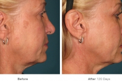 before_after_ultherapy_results_full-face5