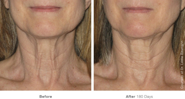 ultherapy-0028-0086w_180day_1tx_neck_gallery