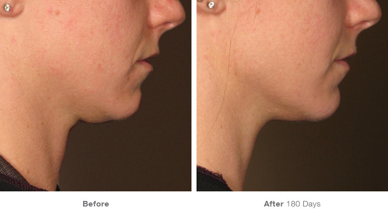 before_after_ultherapy_results_under-chin20