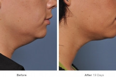 before_after_ultherapy_results_under-chin38