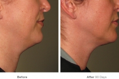 before_after_ultherapy_results_under-chin7